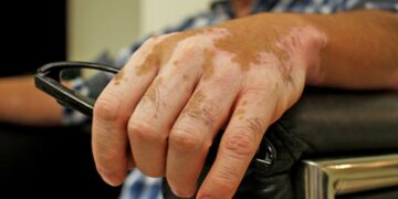 ¿Qué es el vitiligo y qué lo provoca?